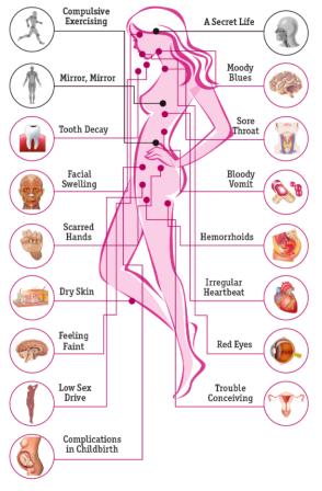 Via: http://www.healthline.com/health/bulimia/effects-on-body